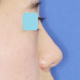 新宿ラクル美容外科クリニック 山本厚志 「鼻プロテーゼ隆鼻術+小鼻縮小」 手術後1ヶ月目