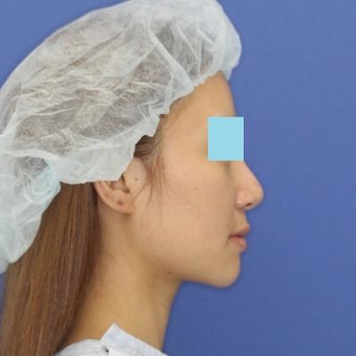 新宿ラクル美容外科クリニック 山本厚志 「ウルトラ小顔コラーゲンリフト」 手術前