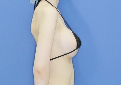 新宿ラクル美容外科クリニック 山本厚志 「Motiva(モティバ)エルゴノミクス」 手術後1ヶ月目