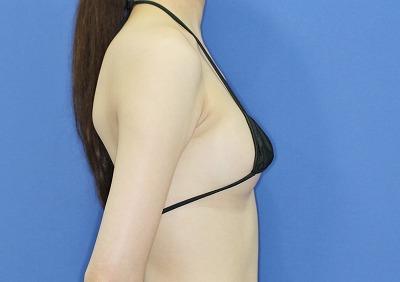 新宿ラクル美容外科クリニック 山本厚志 「アクアフィリング(AQUA filling)注入豊胸」 手術後1週間目
