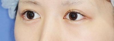 新宿ラクル美容外科クリニック 山本厚志 「目尻切開」 手術後2ケ月目