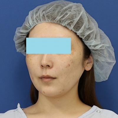 新宿ラクル美容外科クリニック 山本厚志 「ミントリフトⅡminiS flex(シークレットリフト)」 手術直後