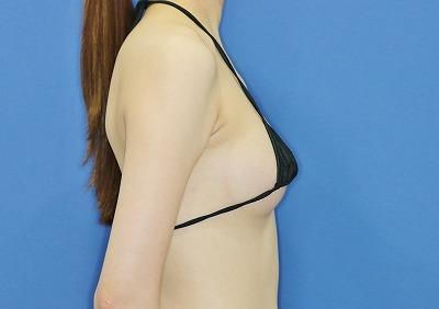 新宿ラクル美容外科クリニック 山本厚志 「アクアフィリング(AQUA filling)注入豊胸」 手術後2ヶ月目