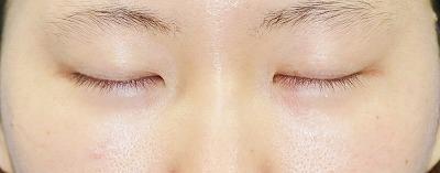 新宿ラクル美容外科クリニック 山本厚志 埋没法二重術(エクセレントアイ)+下眼瞼下制術 手術前