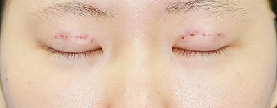 新宿ラクル美容外科クリニック 山本厚志 埋没法二重術(エクセレントアイ)+下眼瞼下制術 手術直後