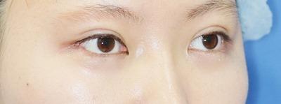 新宿ラクル美容外科クリニック 山本厚志 埋没法二重術(エクセレントアイ)+下眼瞼下制術 手術後1週間目