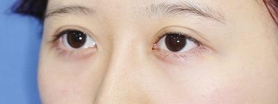 新宿ラクル美容外科クリニック 山本厚志 「目尻切開」 手術前
