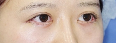 新宿ラクル美容外科クリニック 山本厚志 「目尻切開」 手術直後