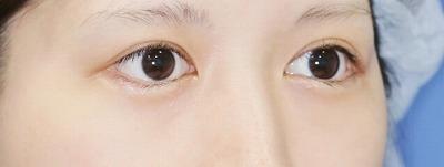 新宿ラクル美容外科クリニック 山本厚志 「目尻切開」 手術後3ケ月目