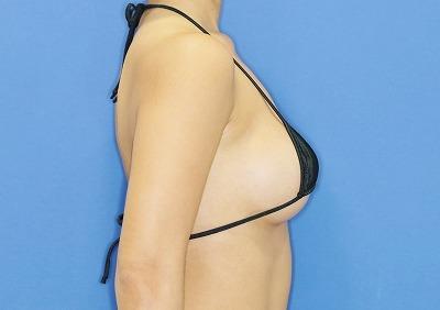 新宿ラクル美容外科クリニック 山本厚志 「Motiva(モティバ)エルゴノミクス」豊胸術 手術後12ヶ月目