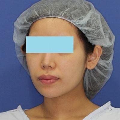 新宿ラクル美容外科クリニック 山本厚志 「ミントリフトⅡminiS flex(シークレットリフト)」 手術前