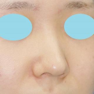 新宿ラクル美容外科クリニック 山本厚志 「クレヴィエル・コントアによる隆鼻術」 施術前