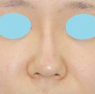 新宿ラクル美容外科クリニック 山本厚志 「クレヴィエル・コントアによる隆鼻術」 施術直後
