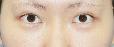 新宿ラクル美容外科クリニック 山本厚志 埋没法二重術(エクセレントアイ)+下眼瞼下制術 手術後2ヶ月目