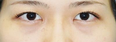 新宿ラクル美容外科クリニック 山本厚志 「目頭切開」 手術後1ヶ月目