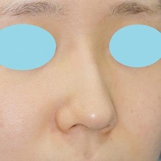 新宿ラクル美容外科クリニック 山本厚志 「クレヴィエル・コントアによる隆鼻術」 施術後3日目