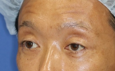 新宿ラクル美容外科クリニック 山本厚志 眉下切開法 手術後6ヶ月目