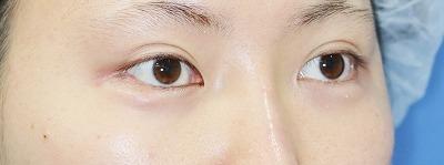 新宿ラクル美容外科クリニック 山本厚志 埋没法二重術(エクセレントアイ)+下眼瞼下制術 手術後1ヶ月目