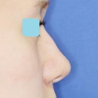 新宿ラクル美容外科クリニック 山本厚志 鼻尖軟骨形成(maeda法)+小鼻縮小 手術後1週間目