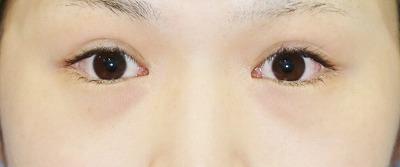 新宿ラクル美容外科クリニック 山本厚志 下眼瞼下制術(たれ目術) (埋没法) 手術後1週間目