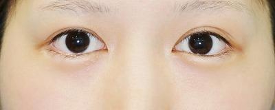 新宿ラクル美容外科クリニック 山本厚志 「目尻切開」 手術後12ヶ月目 4月13日