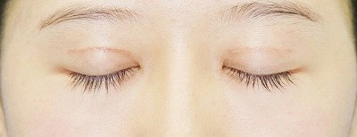 新宿ラクル美容外科クリニック 山本厚志 「全切開法二重術」 手術後1ヶ月目