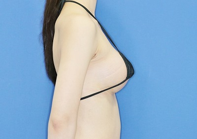 新宿ラクル美容外科クリニック 山本厚志 「Motiva(モティバ)エルゴノミクス」 手術後1週間目