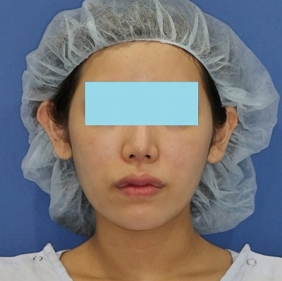 新宿ラクル美容外科クリニック 山本厚志 「ミントリフトⅡminiS flex(シークレットリフト)」 手術後2ヶ月目