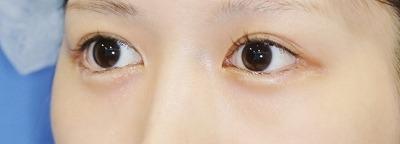 新宿ラクル美容外科クリニック 山本厚志 「目尻切開」 手術後6ケ月目