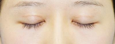 新宿ラクル美容外科クリニック 山本厚志 「全切開法二重術」 手術後2ヶ月目