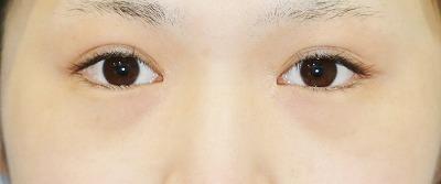 新宿ラクル美容外科クリニック 山本厚志 下眼瞼下制術(たれ目術) (埋没法) 手術前