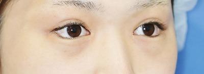 新宿ラクル美容外科クリニック 山本厚志 下眼瞼下制術(たれ目術) (埋没法) 手術直後