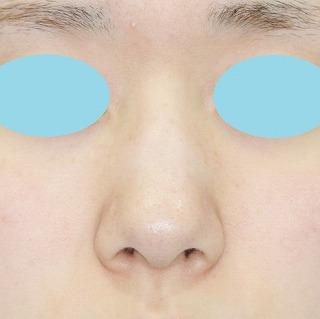 新宿ラクル美容外科クリニック 山本厚志 鼻尖軟骨形成(maeda法)+小鼻縮小 手術前