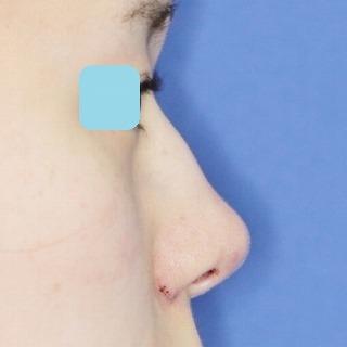 新宿ラクル美容外科クリニック 山本厚志 鼻尖軟骨形成(maeda法)+小鼻縮小 手術直後