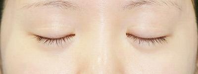 新宿ラクル美容外科クリニック 山本厚志 「全切開法二重術」 手術後12ヶ月目 6月11日