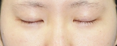 新宿ラクル美容外科クリニック 山本厚志 埋没法二重術(エクセレントアイ)+下眼瞼下制術 手術後3ヶ月目
