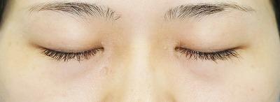 新宿ラクル美容外科クリニック 山本厚志 「目頭切開」 手術後2ヶ月目