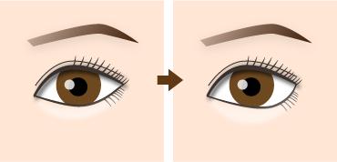 新宿ラクル美容外科クリニック 山本厚志 下眼瞼下制術(たれ目術) (埋没法)