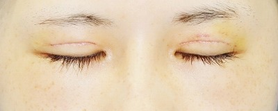 「眼瞼下垂(挙筋腱膜前転法)+全切開二重術」 新宿ラクル美容外科クリニック 山本厚志 10代女性 手術後1週間目