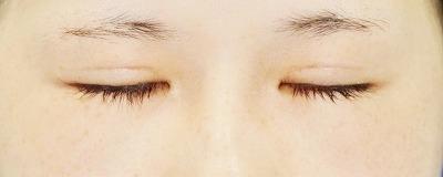 「眼瞼下垂(挙筋腱膜前転法)+全切開二重術」 新宿ラクル美容外科クリニック 山本厚志 10代女性 手術後2ヶ月目