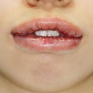 新宿ラクル美容外科クリニック 山本厚志 「口唇縮小術」 手術直後