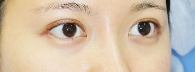 新宿ラクル美容外科クリニック 山本厚志 埋没法二重術(エクセレントアイ)+目尻切開+下眼瞼下制術 手術後1ヶ月目