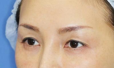 新宿ラクル美容外科クリニック 山本厚志 眉下切開法+目尻切開 手術前