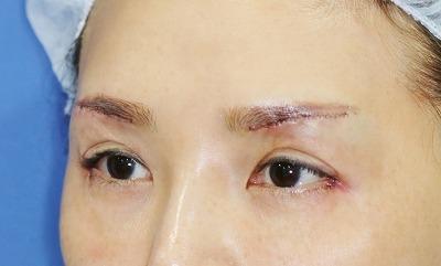 新宿ラクル美容外科クリニック 山本厚志 眉下切開法+目尻切開 手術直後