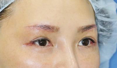 新宿ラクル美容外科クリニック 山本厚志 眉下切開法+目尻切開 手術後1週間目