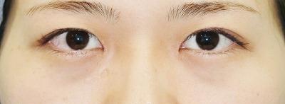 新宿ラクル美容外科クリニック 山本厚志 「目頭切開」 手術後3ヶ月目