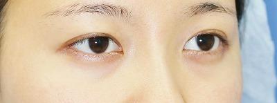 新宿ラクル美容外科クリニック 山本厚志 埋没法二重術(エクセレントアイ)+目尻切開+下眼瞼下制術 手術前