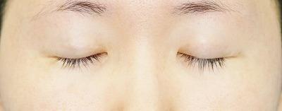 新宿ラクル美容外科クリニック 山本厚志 埋没法二重術(エクセレントアイ) 手術後1ヶ月目