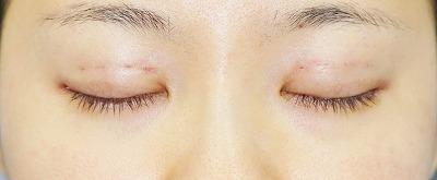 新宿ラクル美容外科クリニック 山本厚志 埋没法二重術(エクセレントアイ)+目尻切開+下眼瞼下制術 手術直後