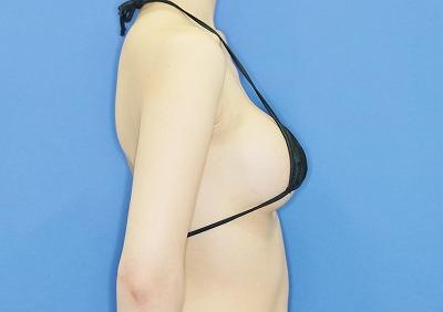 新宿ラクル美容外科クリニック 山本厚志 「Motiva(モティバ)エルゴノミクス」 手術後12ヶ月目
